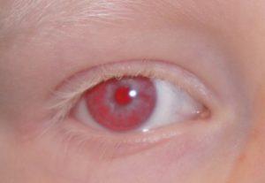 Albino oog