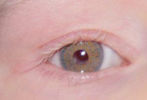 Albino oog met irisprintlens