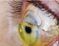 Ptosis scleralens