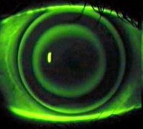 Fluorescentie beeld bij een ortho-k contactlens
