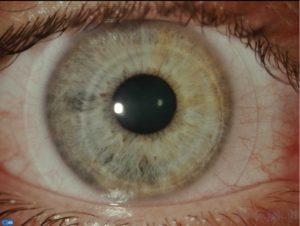 Op dit oog een hybride contactlens