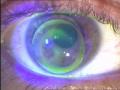 Fluorescentiebeeld bij een contactlensaanpassing bij keratoconus