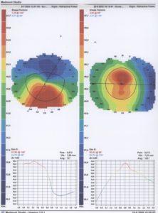 Topografie bij een keratoconus
